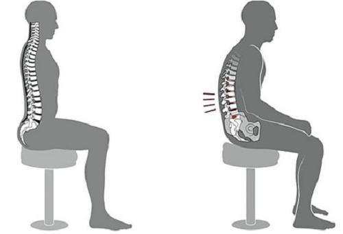 tư thế ngồi sai, đau xương khớp